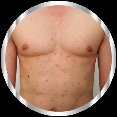 Псориаз – хроническое заболевание кожи. Псориаз, лечение псориаза, симптомы псориаза