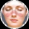 Волчанка - род заболеваний, протекающих с поражением кожи