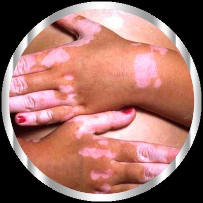 Витилиго – относительно редкое и сложное в лечении заболевание